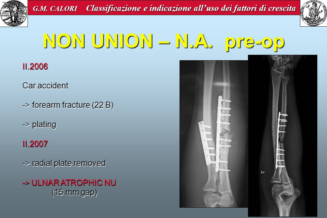 NON UNION – N.A. pre-op II.2006 Car accident -> forearm fracture (22 B) -> plating II.2007 -> radial plate removed - > ULNAR ATROPHIC NU (15 mm gap) G