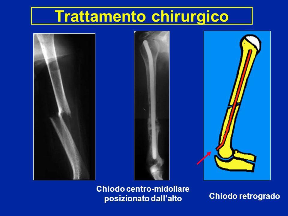 Trattamento chirurgico Chiodo centro-midollare posizionato dallalto Chiodo retrogrado