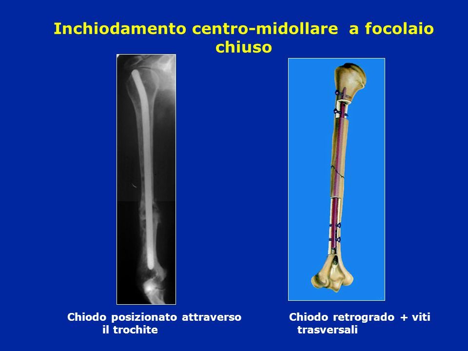 Inchiodamento centro-midollare a focolaio chiuso Chiodo posizionato attraverso Chiodo retrogrado + viti il trochitetrasversali