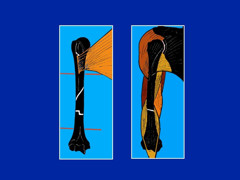 Chiodo bloccato per frattura metafiso-diafisaria instabile Foto J. Chouteau