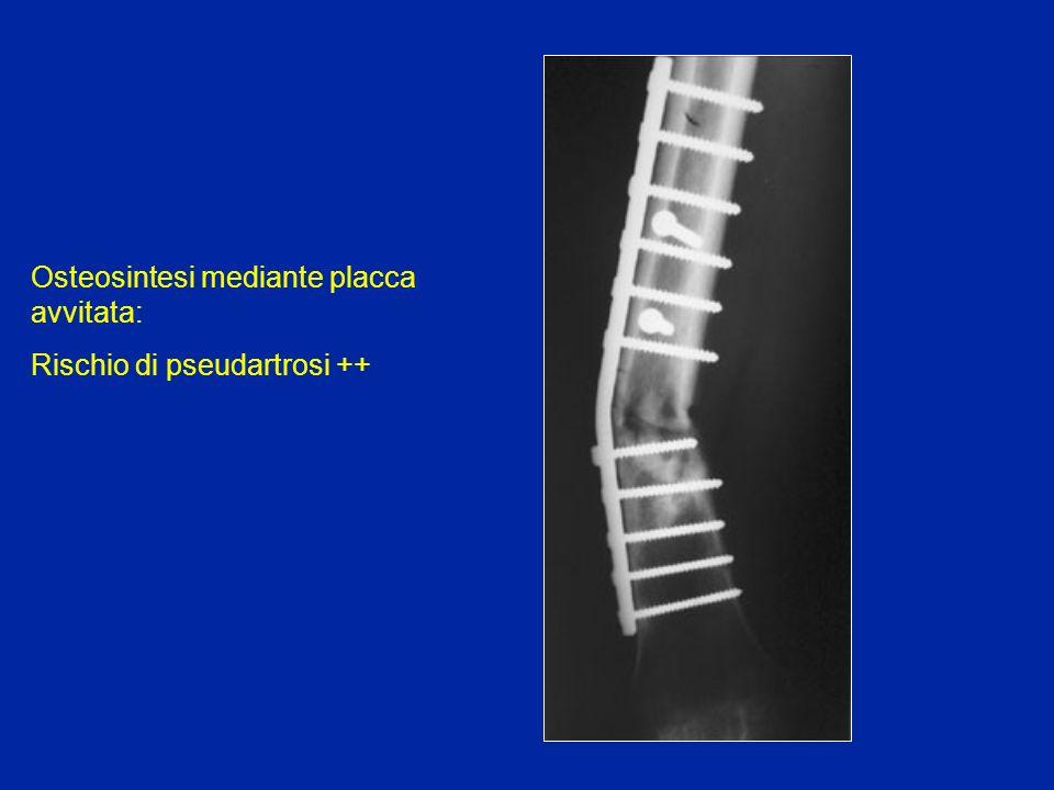 Osteosintesi mediante placca avvitata: Rischio di pseudartrosi ++
