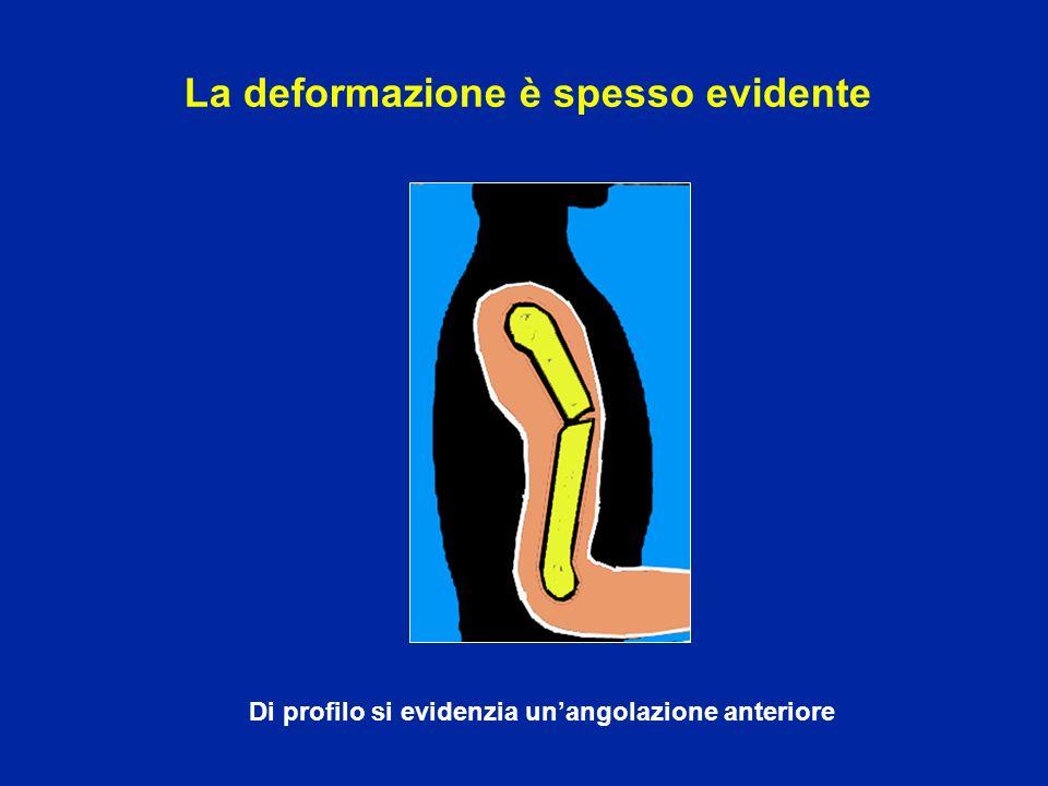 La deformazione è spesso evidente Di profilo si evidenzia unangolazione anteriore