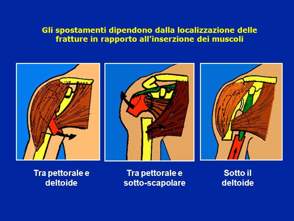 Gli spostamenti dipendono dalla localizzazione delle fratture in rapporto allinserzione dei muscoli Tra pettorale e deltoide Tra pettorale e sotto-sca