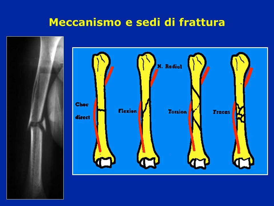 Complicanze precoci Esposizione Lesione dei vasi Lesione del nervo radiale