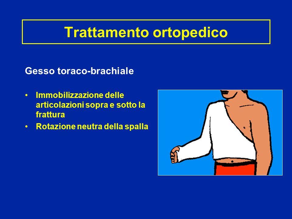 Trattamento ortopedico Gesso toraco-brachiale Immobilizzazione delle articolazioni sopra e sotto la frattura Rotazione neutra della spalla
