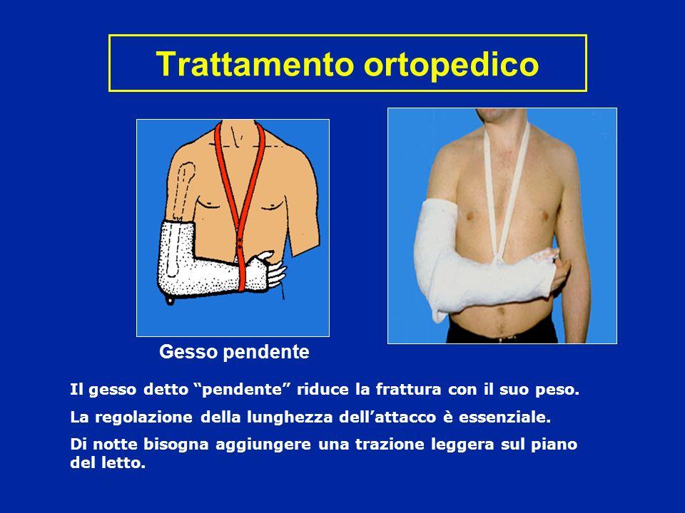 Trattamento ortopedico Il gesso detto pendente riduce la frattura con il suo peso. La regolazione della lunghezza dellattacco è essenziale. Di notte b