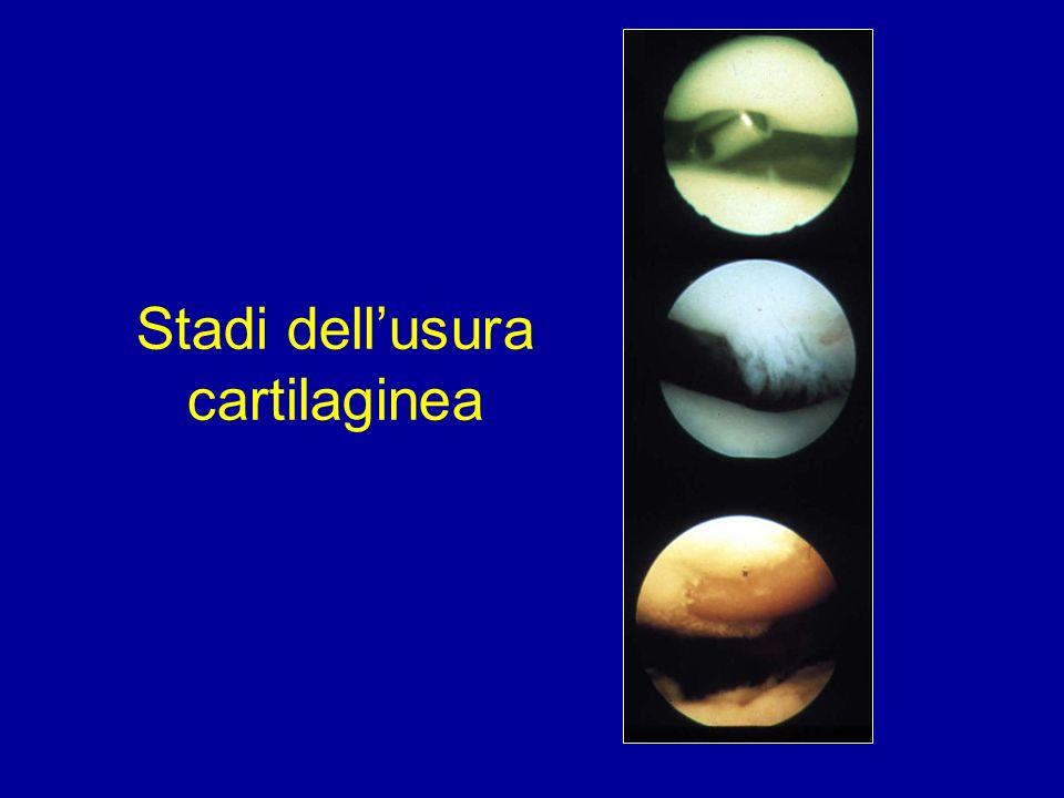 Stadi dellusura cartilaginea