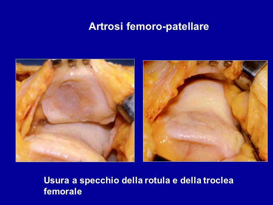 Usura a specchio della rotula e della troclea femorale Artrosi femoro-patellare