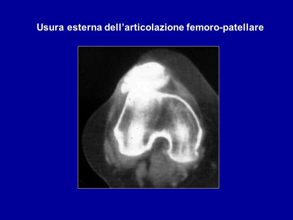 Usura esterna dellarticolazione femoro-patellare