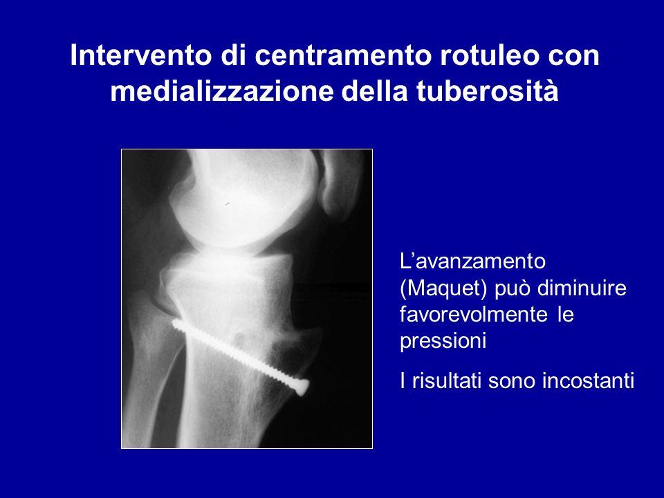 Intervento di centramento rotuleo con medializzazione della tuberosità Lavanzamento (Maquet) può diminuire favorevolmente le pressioni I risultati son