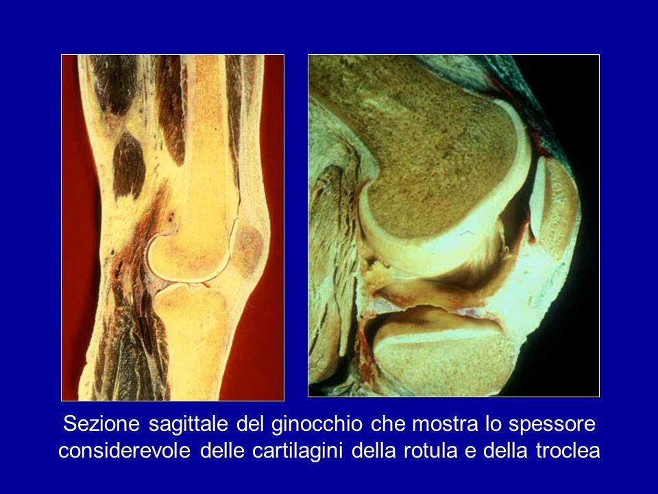 Sezione sagittale del ginocchio che mostra lo spessore considerevole delle cartilagini della rotula e della troclea