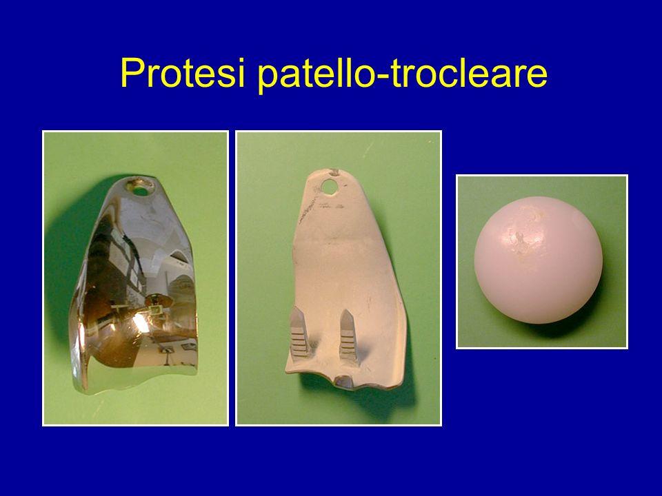 Protesi patello-trocleare