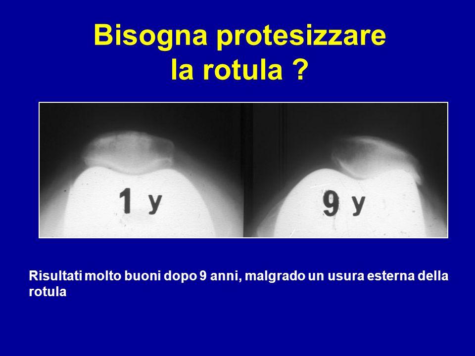 Bisogna protesizzare la rotula ? Risultati molto buoni dopo 9 anni, malgrado un usura esterna della rotula