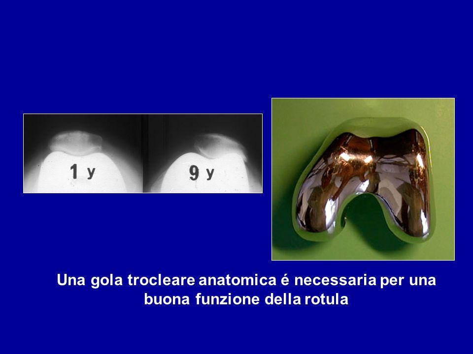 Una gola trocleare anatomica é necessaria per una buona funzione della rotula