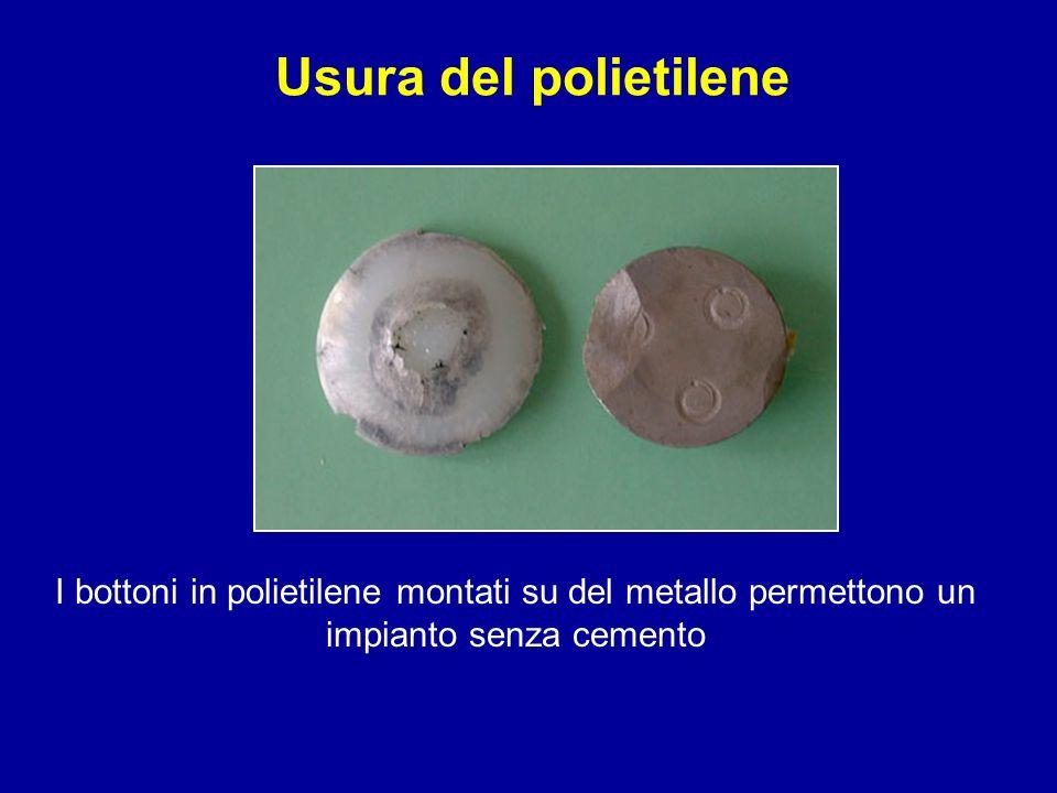 Usura del polietilene I bottoni in polietilene montati su del metallo permettono un impianto senza cemento