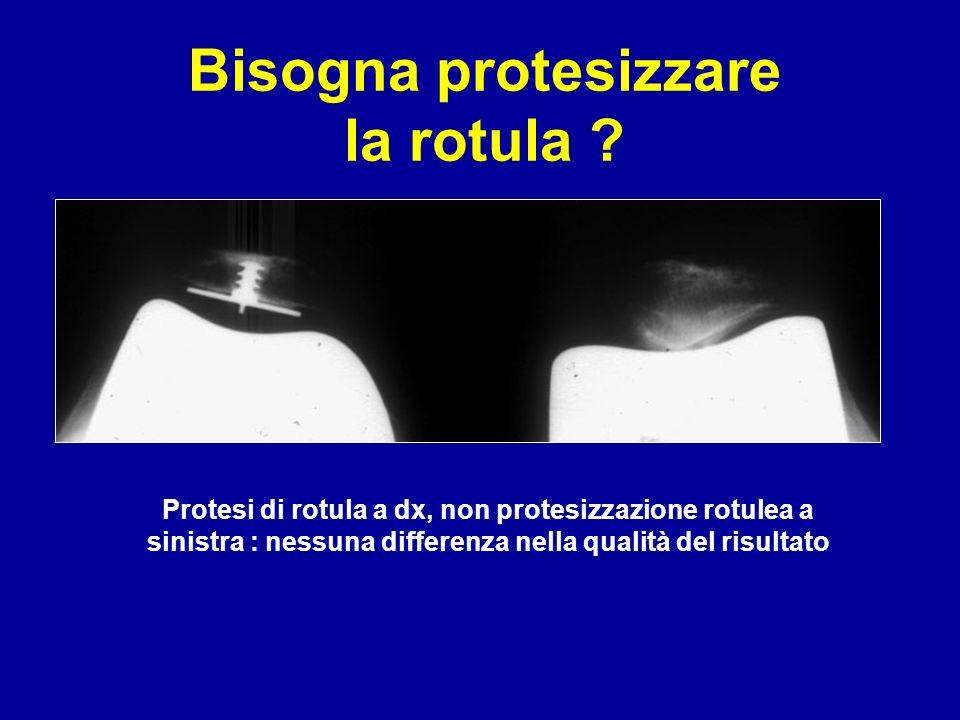 Protesi di rotula a dx, non protesizzazione rotulea a sinistra : nessuna differenza nella qualità del risultato Bisogna protesizzare la rotula ?