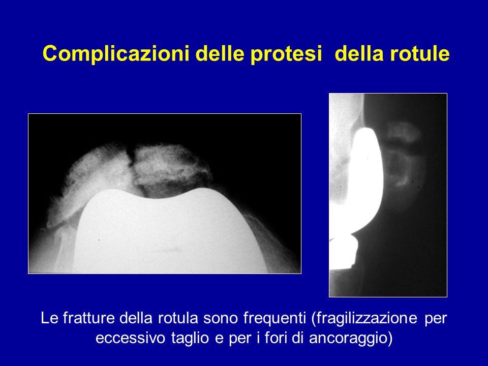 Complicazioni delle protesi della rotule Le fratture della rotula sono frequenti (fragilizzazione per eccessivo taglio e per i fori di ancoraggio)