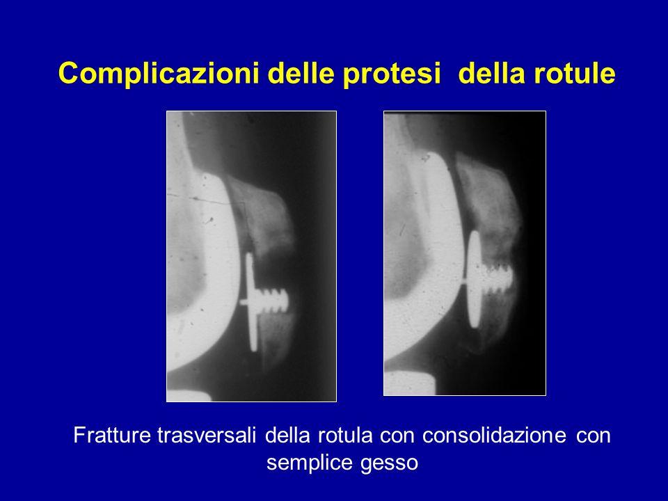 Fratture trasversali della rotula con consolidazione con semplice gesso Complicazioni delle protesi della rotule