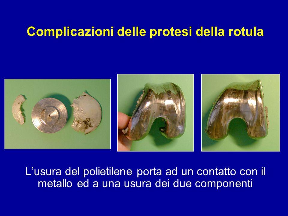 Lusura del polietilene porta ad un contatto con il metallo ed a una usura dei due componenti Complicazioni delle protesi della rotula
