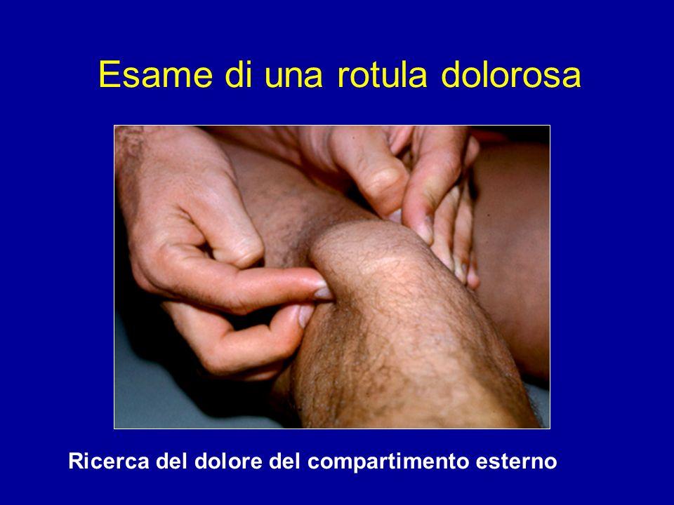 Ricerca del dolore del compartimento esterno Esame di una rotula dolorosa