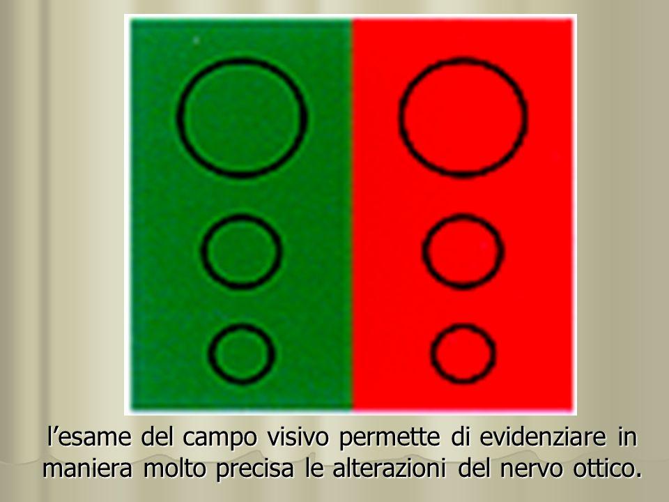 lesame del campo visivo permette di evidenziare in maniera molto precisa le alterazioni del nervo ottico.