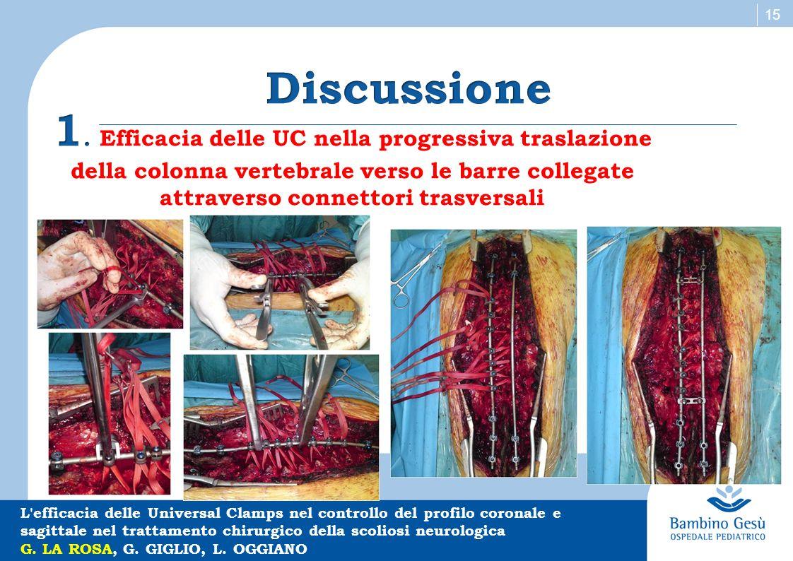 15 L'efficacia delle Universal Clamps nel controllo del profilo coronale e sagittale nel trattamento chirurgico della scoliosi neurologica G. LA ROSA,