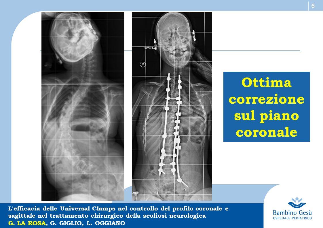 7 Eccellente controllo del profilo sagittale L efficacia delle Universal Clamps nel controllo del profilo coronale e sagittale nel trattamento chirurgico della scoliosi neurologica G.