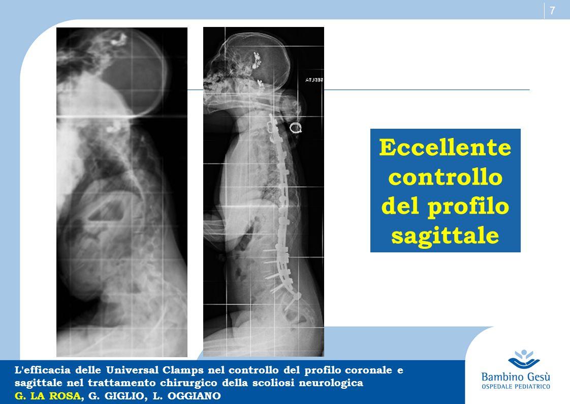 7 Eccellente controllo del profilo sagittale L'efficacia delle Universal Clamps nel controllo del profilo coronale e sagittale nel trattamento chirurg