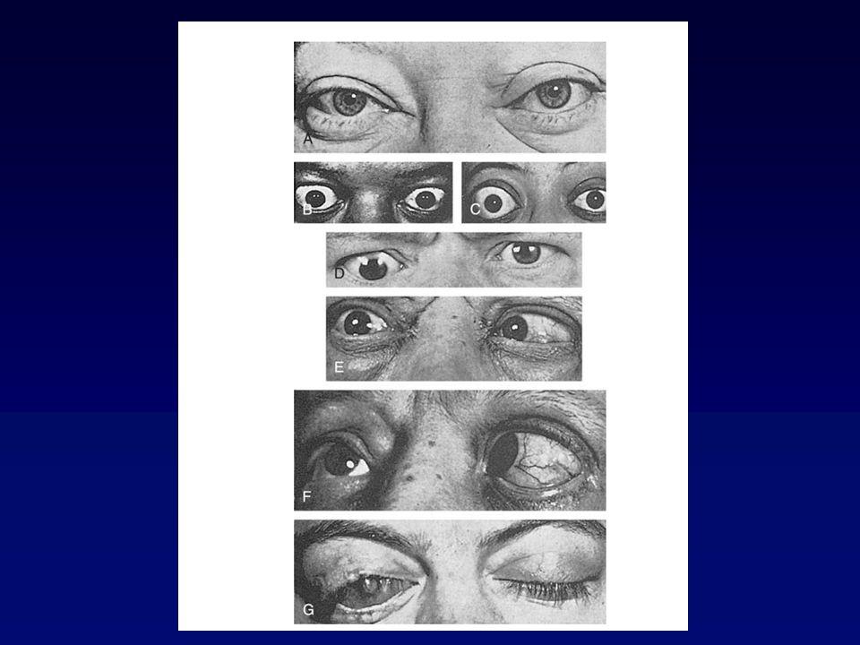 Classe Descrizione 0 Nessun segno o sintomo 1 Solo segni, senza sintomi (retrazione palpebra sup., lagoftalmo, proptosi inf a 22 mm) 2 coinvolgimento tessuti molli (sintomi e segni) 3 Proptosi maggiore di 22 mm 4 Interessamento muscoli estrinseci dellocchio 5 Interessamento cornea 6 Perdita visus (interessamento nervo ottico ClassificazioneClassificazione
