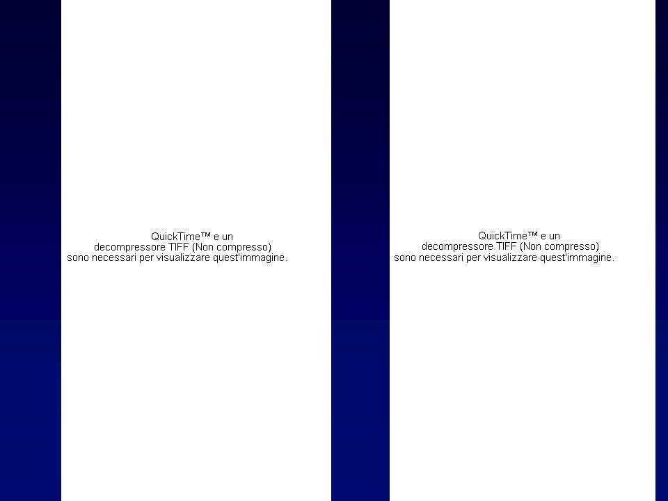 Diagnosi di Tireotossicosi Laboratorio:TSH, FT3, FT4 N, AAT e AAM N o AAT e AAM N o Trab (Anticorpi anti-recettore del TSH) N Ecografia:tiroide di volume aumentato ad ecostruttura ipoecogena e disomogenea Scintigrafia:immagine aumentata o normale captazione aumentata o normale