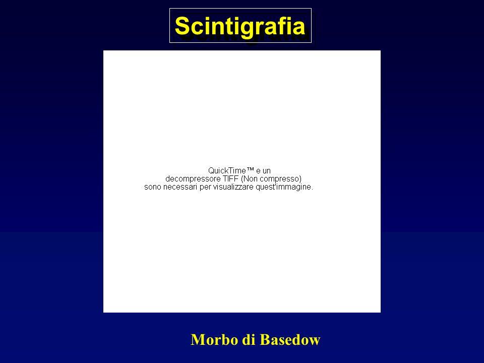 ScintigrafiaScintigrafia M. Di Basedow