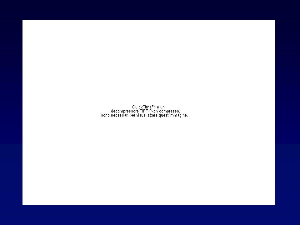 Fattori di rischio Genetica (associazione con HLA DR3)Genetica (associazione con HLA DR3) Stress, fumoStress, fumo Eccesso continuato di apporto iodico (terapia con amiodarone)Eccesso continuato di apporto iodico (terapia con amiodarone) Sesso femminile ( 10:1)Sesso femminile ( 10:1) GravidanzaGravidanza Terapia con citochine (interferone e )Terapia con citochine (interferone e )
