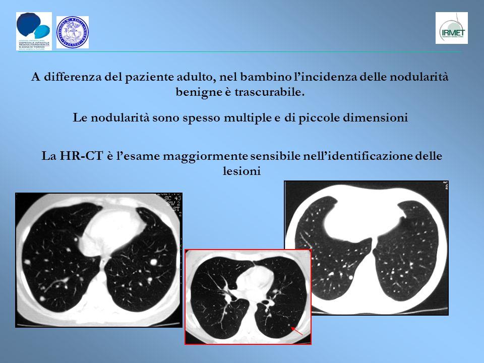 Nel bambino sottoposto a follow-up dopo chemio e radioterapia la specificita della TC decade ai livelli del soggetto adulto .