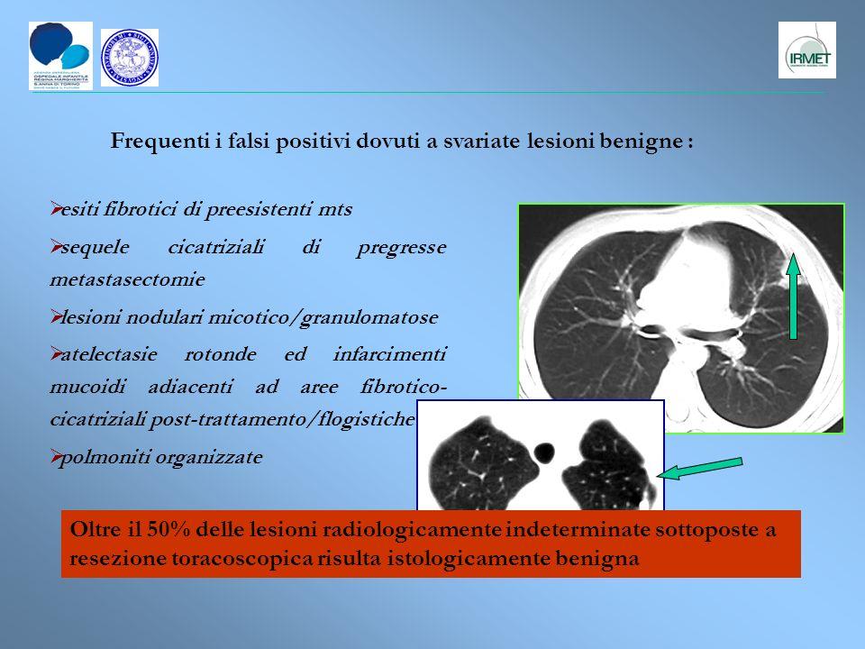 esiti fibrotici di preesistenti mts sequele cicatriziali di pregresse metastasectomie lesioni nodulari micotico/granulomatose atelectasie rotonde ed i