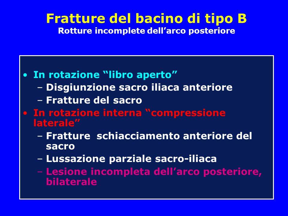Fratture del bacino di tipo B Rotture incomplete dellarco posteriore In rotazione libro aperto –Disgiunzione sacro iliaca anteriore –Fratture del sacr
