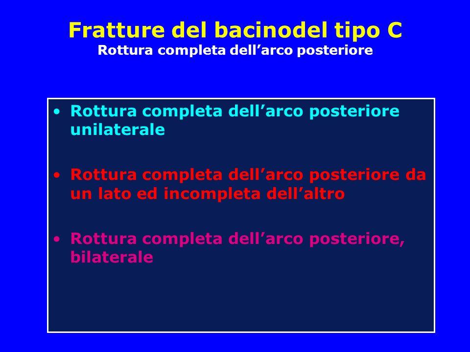 Fratture del bacinodel tipo C Rottura completa dellarco posteriore Rottura completa dellarco posteriore unilaterale Rottura completa dellarco posteriore da un lato ed incompleta dellaltro Rottura completa dellarco posteriore, bilaterale