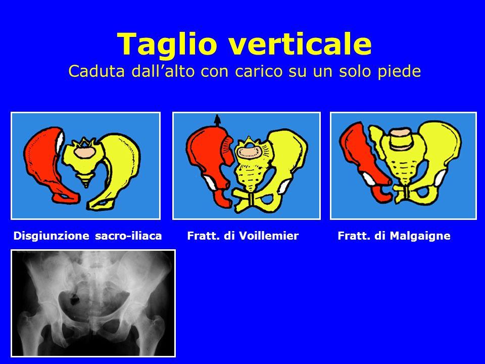 Taglio verticale Caduta dallalto con carico su un solo piede Disgiunzione sacro-iliaca Fratt. di Voillemier Fratt. di Malgaigne
