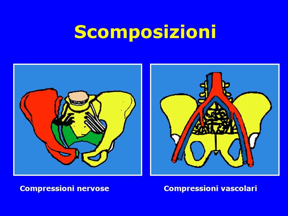 Scomposizioni Compressioni nervoseCompressioni vascolari