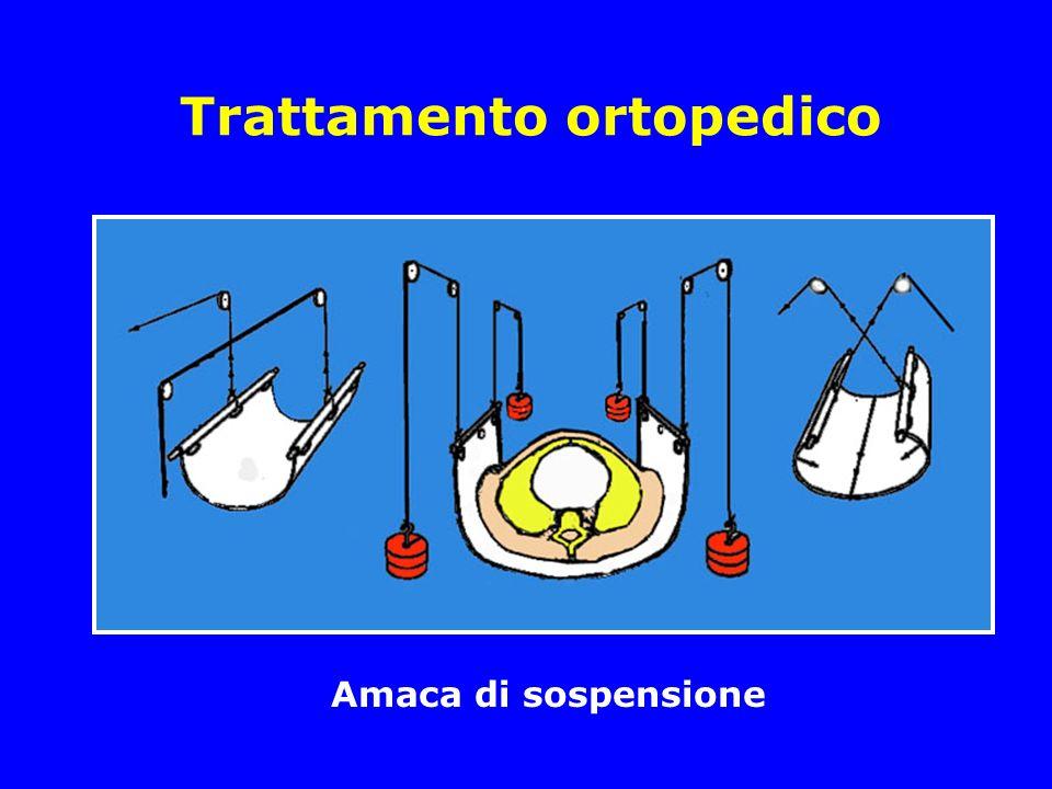 Trattamento ortopedico Amaca di sospensione