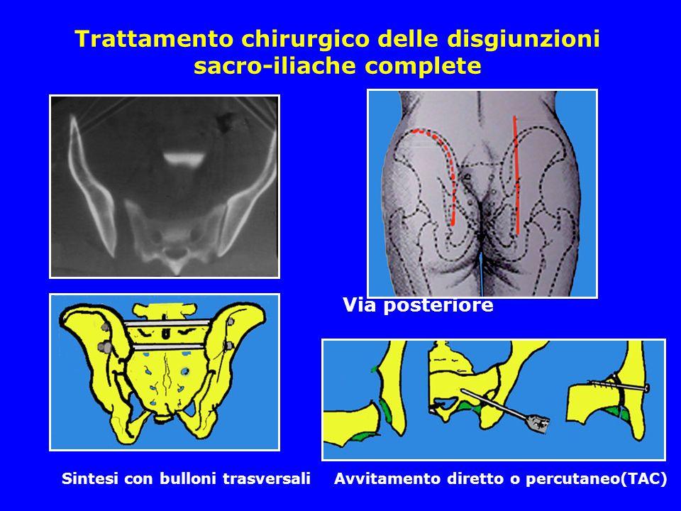 Trattamento chirurgico delle disgiunzioni sacro-iliache complete Via posteriore Sintesi con bulloni trasversali Avvitamento diretto o percutaneo(TAC)