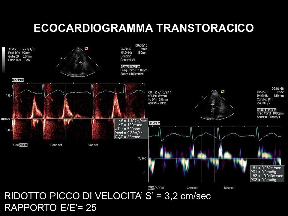 ECOCARDIOGRAMMA TRANSTORACICO RIDOTTO PICCO DI VELOCITA S = 3,2 cm/sec RAPPORTO E/E= 25