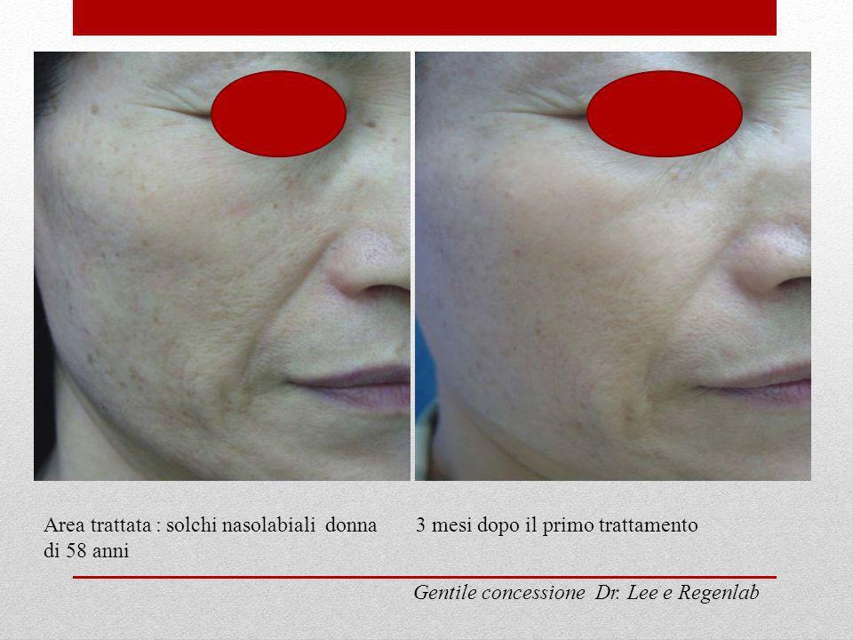 Area trattata : solchi nasolabiali donna di 58 anni 3 mesi dopo il primo trattamento Gentile concessione Dr. Lee e Regenlab
