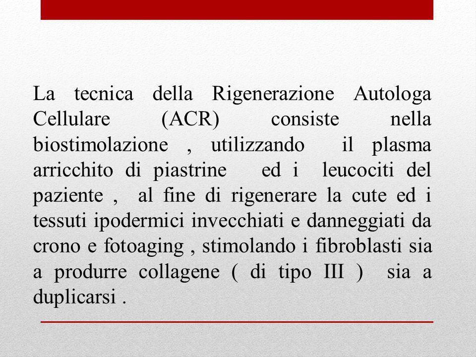 La tecnica della Rigenerazione Autologa Cellulare (ACR) consiste nella biostimolazione, utilizzando il plasma arricchito di piastrine ed i leucociti d