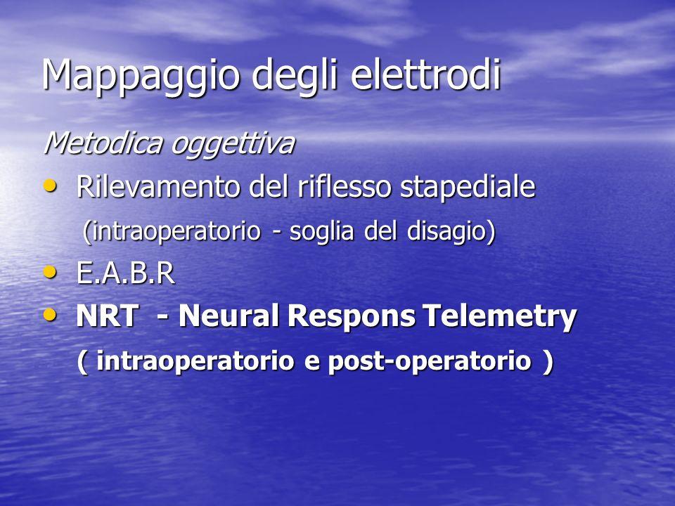 Mappaggio degli elettrodi Metodica oggettiva Rilevamento del riflesso stapediale Rilevamento del riflesso stapediale (intraoperatorio - soglia del dis