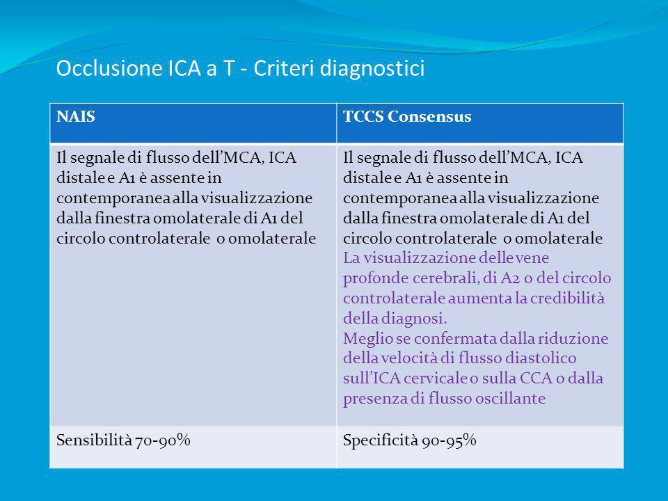 Occlusione ICA a T - Criteri diagnostici NAISTCCS Consensus Il segnale di flusso dellMCA, ICA distale e A1 è assente in contemporanea alla visualizzaz