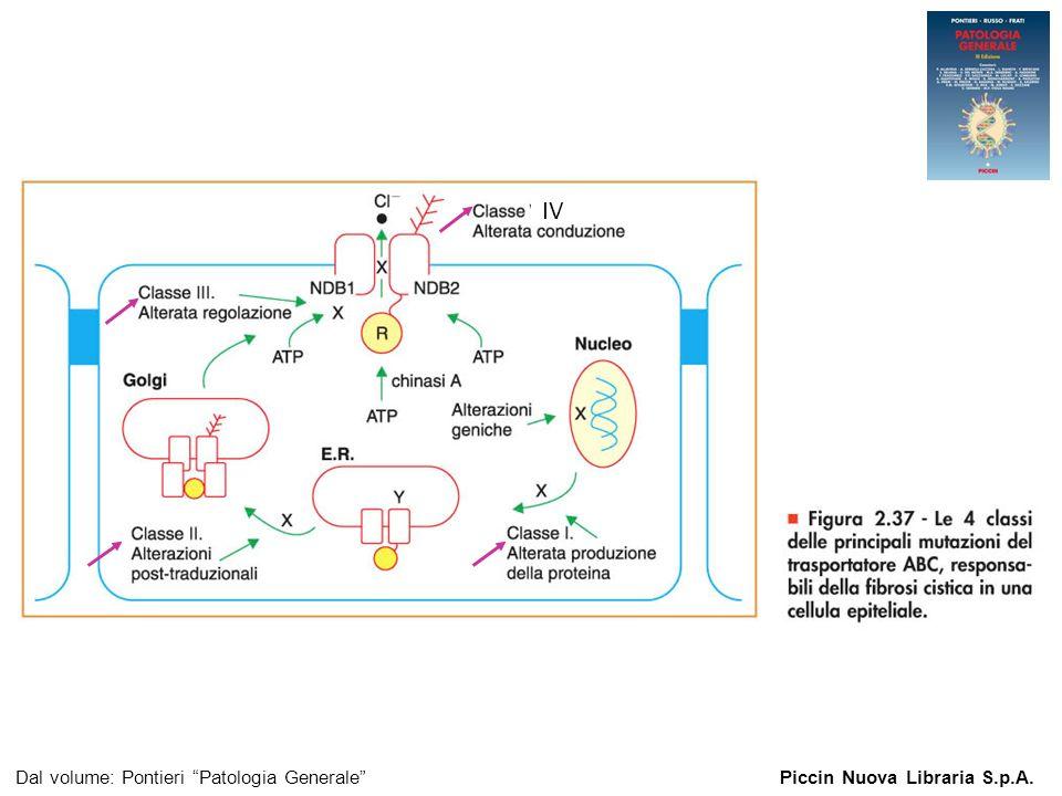 Figura 2.37 - Le 4 classi delle principali mutazioni del trasportatore ABC. Dal volume: Pontieri Patologia GeneralePiccin Nuova Libraria S.p.A. IV