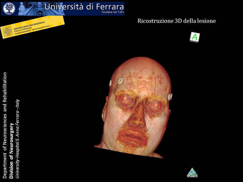 Department of Neurosciences and Rehabilitation Division of Neurosurgery University-Hospital S. Anna Ferrara - Italy Ricostruzione 3D della lesione