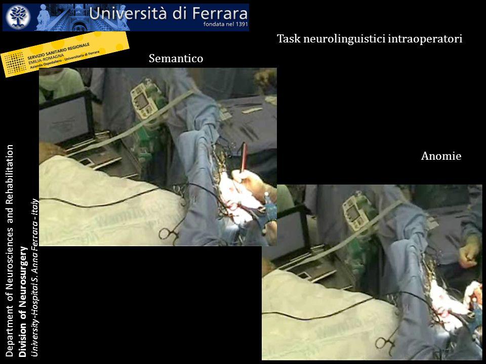 Department of Neurosciences and Rehabilitation Division of Neurosurgery University-Hospital S. Anna Ferrara - Italy Task neurolinguistici intraoperato