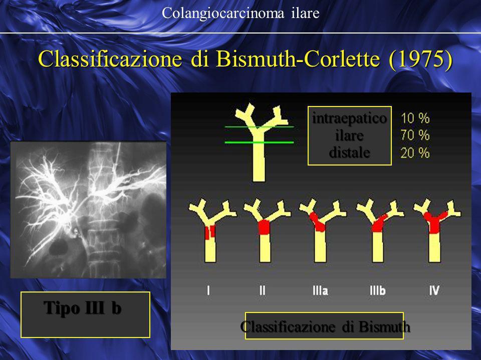 Colangiocarcinoma ilare Classificazione di Bismuth-Corlette (1975) intraepaticoilaredistale Classificazione di Bismuth Tipo III b