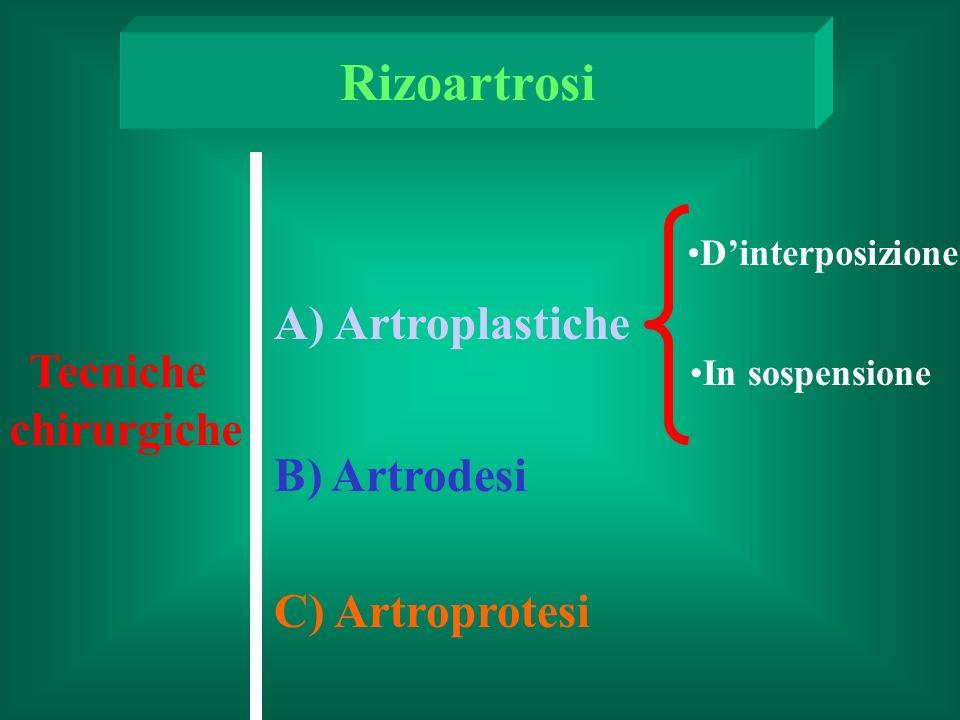 Tecniche chirurgiche A) Artroplastiche B) Artrodesi C) Artroprotesi Dinterposizione In sospensione Rizoartrosi